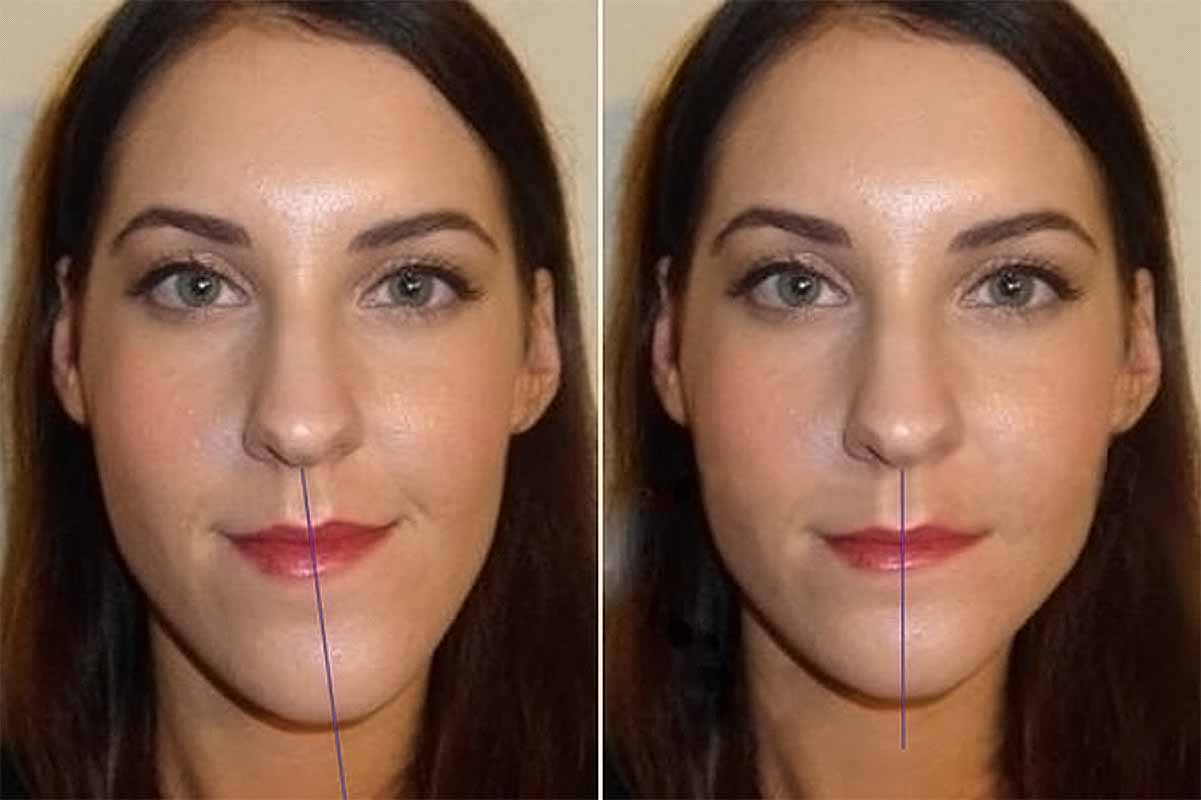 исправление прикуса винирами фото до и после