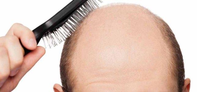 bald.jpg
