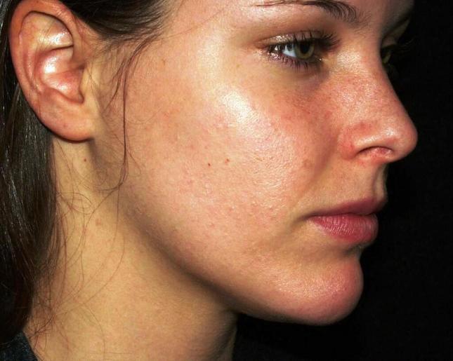 pimple.jpg