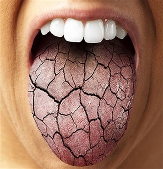 dry-mouth.jpg