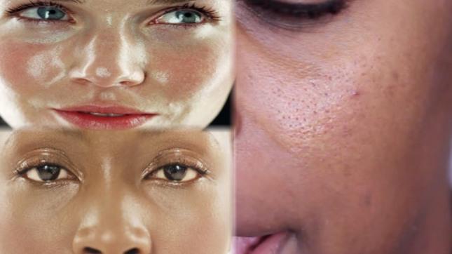 oily skin.jpg
