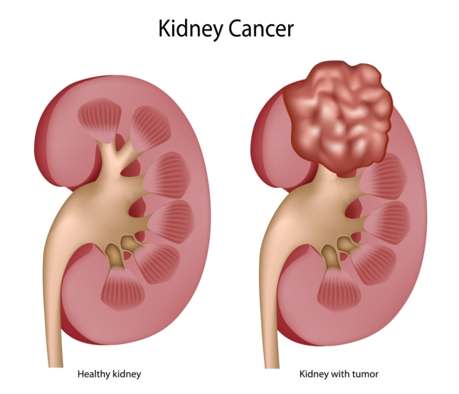 Kidney-Cancer-1.jpg