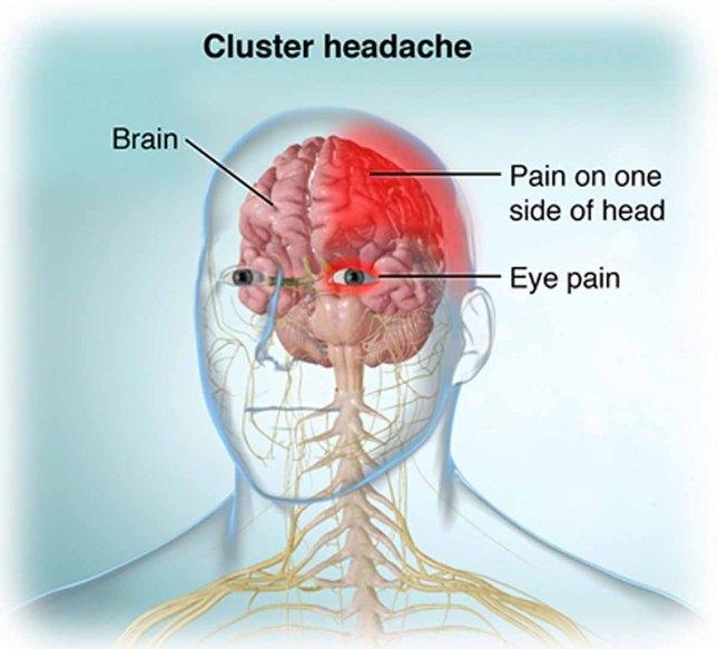 cluster headache.jpg