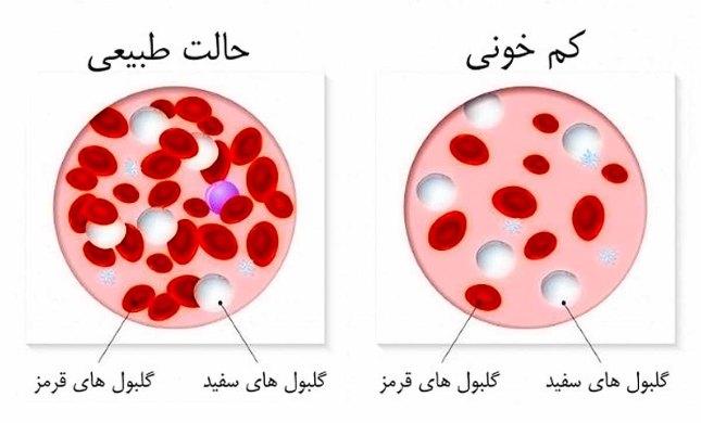 کم خونی.jpg