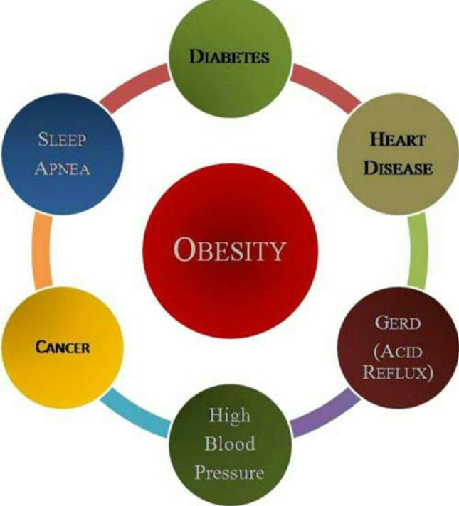 عوارض چاقی.jpg