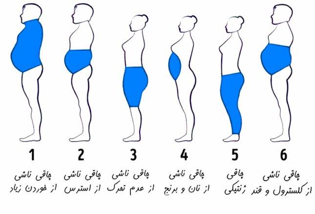 چاقی شما از چیست.jpg