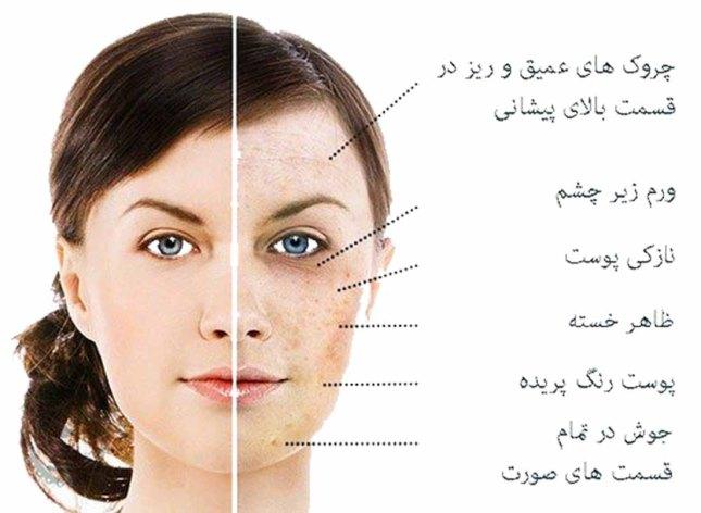 قند با صورت شما چه می کند.jpg