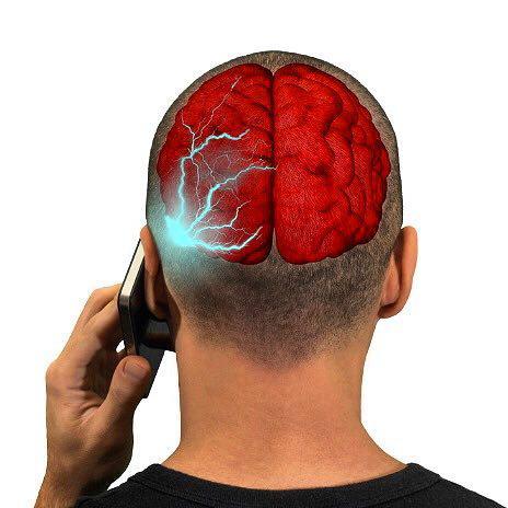 موبایل و مغز