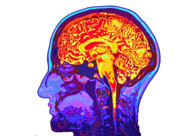 مغز (2).jpg